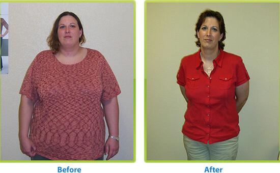 לפני ואחרי דיאטה מהירה