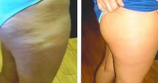 revitol before and after